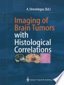 Imaging of Brain Tumors with Histological Correlations