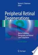 Peripheral Retinal Degenerations Book