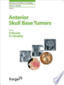 Anterior Skull Base Tumors