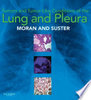 Tumors and Tumor like Conditions of the Lung and Pleura E Book