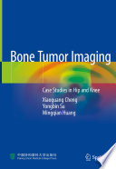 Bone Tumor Imaging