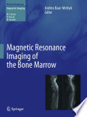 Magnetic Resonance Imaging of the Bone Marrow