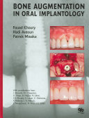 Bone Augmentation in Oral Implantology