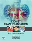 Kidney Transplantation Book
