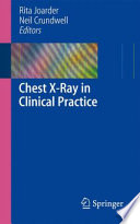 Chest X-Ray in Clinical Practice