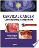 Cervical Cancer Book