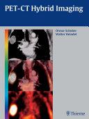 PET-CT Hybrid Imaging