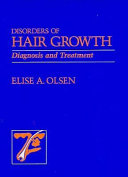 Disorders of Hair Growth