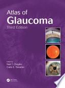 Atlas Of Glaucoma Third Edition Book PDF