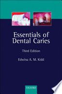 Essentials of Dental Caries  The Disease and Its Management  3rd Ed