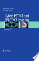 Hybrid PET CT and SPECT CT Imaging