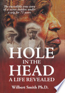 Hole in the Head  A Life Revealed Book PDF