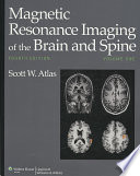 """""""Magnetic Resonance Imaging of the Brain and Spine"""" by Scott W. Atlas"""