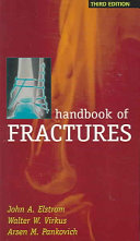 Handbook of Fractures  Third Edition