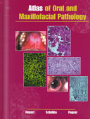 Atlas Of Oral And Maxillofacial Pathology Book PDF