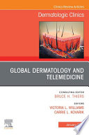 Global Dermatology and Telemedicine  An Issue of Dermatologic Clinics   E Book Book