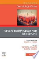 Global Dermatology and Telemedicine  An Issue of Dermatologic Clinics   E Book