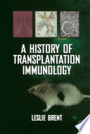 A History of Transplantation Immunology