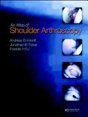 Atlas of Shoulder Arthroscopy Book