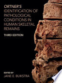 Ortner s Identification of Pathological Conditions in Human Skeletal Remains Book