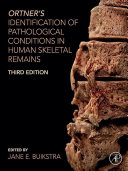 Ortner's Identification of Pathological Conditions in Human Skeletal Remains [Pdf/ePub] eBook