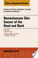 Nonmelanoma Skin Cancer Of The Head And Neck An Issue Of Facial Plastic Surgery Clinics E Book Book PDF