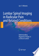 Lumbar Spinal Imaging In Radicular Pain And Related Conditions Book PDF