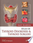 Atlas Of Thyroid Disorders And Thyroid Surgery Book PDF
