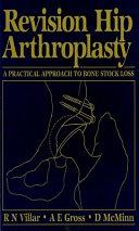 Revision Hip Arthroplasty