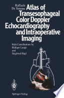 Atlas of Transesophageal Color Doppler Echocardiography and Intraoperative Imaging Book