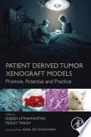 Patient Derived Tumor Xenograft Models