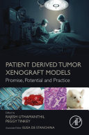 Patient Derived Tumor Xenograft Models