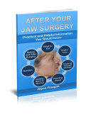 After Your Jaw Surgery