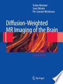 Diffusion Weighted MR Imaging of the Brain