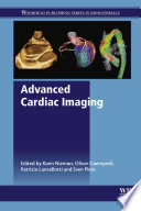 Advanced Cardiac Imaging