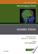 Ischemic Stroke  An Issue of Neuroimaging Clinics of North America E Book