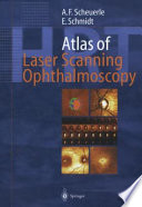 Atlas Of Laser Scanning Ophthalmoscopy Book PDF
