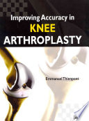 Improving Accuracy in Knee Arthroplasty Book