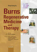 Burns Regenerative Medicine and Therapy
