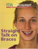 Straight Talk on Braces