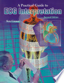A Practical Guide to ECG Interpretation