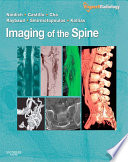 Imaging of the Spine E Book
