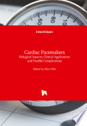 Cardiac Pacemakers Book