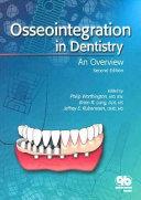 Osseointegration in Dentistry