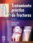 Pdf Tratamiento práctico de fracturas Telecharger