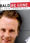 BALD BE GONE - My Hair Transplant