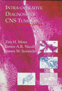 Intra operative Diagnosis of CNS Tumours