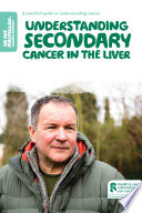Understanding secondary cancer in the liver