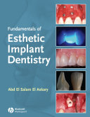 Fundamentals of Esthetic Implant Dentistry