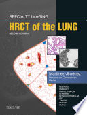 Specialty Imaging: HRCT of the Lung E-Book